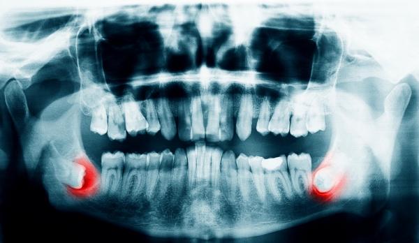 جراحی دندان عقل در نسج سخت