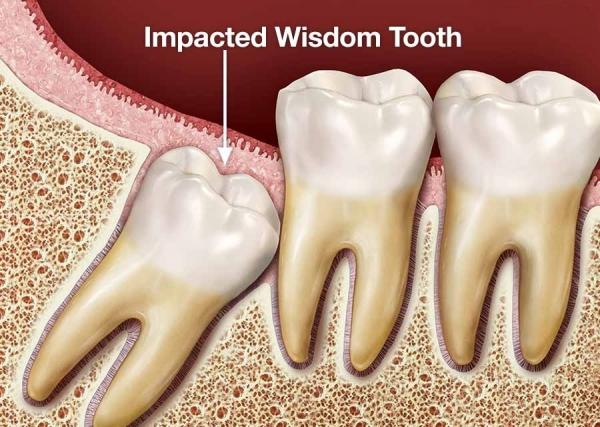 جراحی دندان عقل در نسج نرم