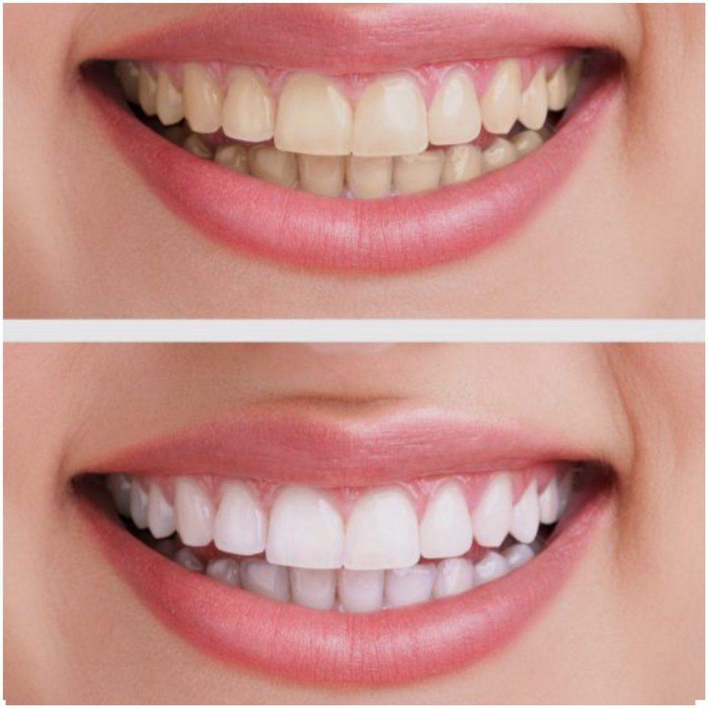 بلیچینگ سفید کردن دندان ها