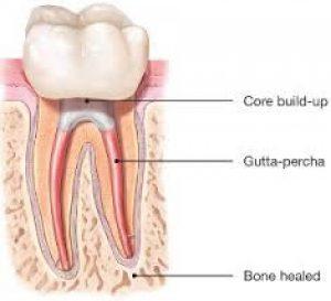 درمان مجدد ریشه دندان RRCT