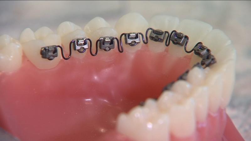 حفره خشک دهان چیست؟