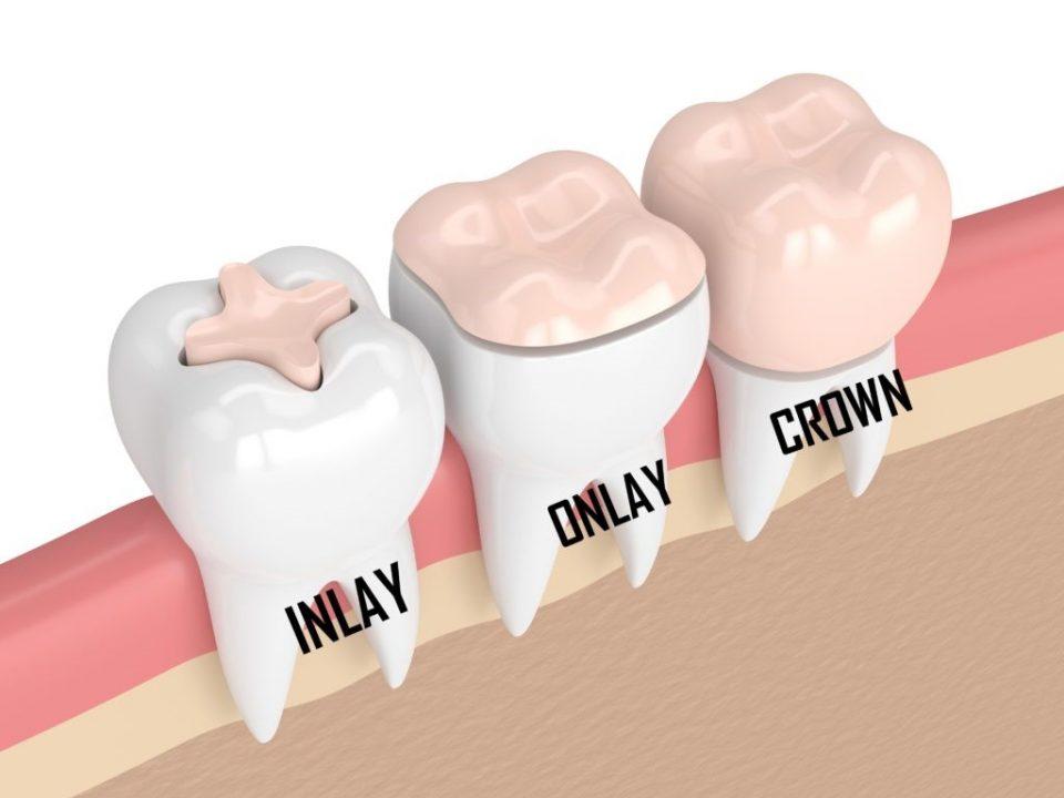 اینله و اُنله دندان چیست و چه کاربردی دارد؟