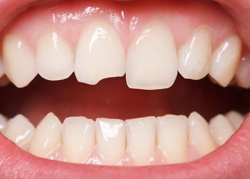 دلایل شکستن دندان