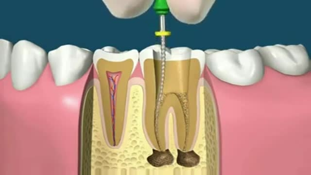 باورهای غلط درباره عصب کشی دندان