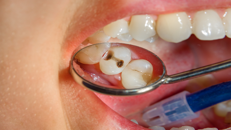 پوسیدگی دندان چیست؟