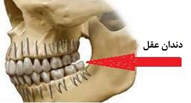 خطرات نکشیدن دندان عقل