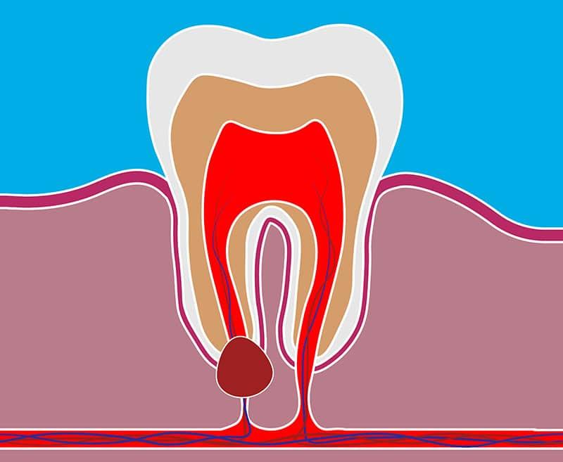 کیست ریشه دندان چگونه ایجاد می شود؟
