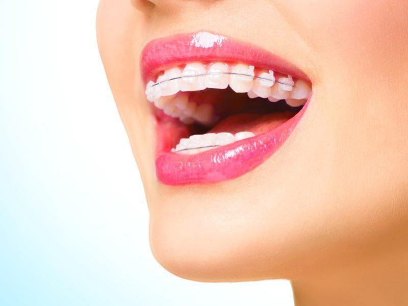 ارتودنسی روی دندان های روکش یا ایمپلنت شده