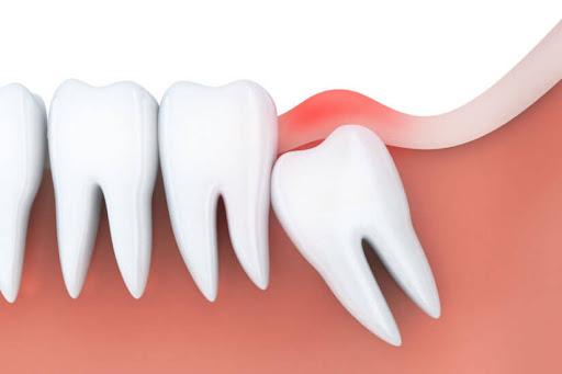 آماده شدن برای جراحی دندان عقل