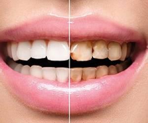راه های پیشگیری و درمان پوسیدگی دندان جلو