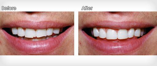 انواع باندینگ دندان