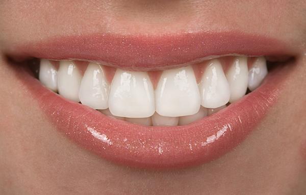 روکش دندان زیبا
