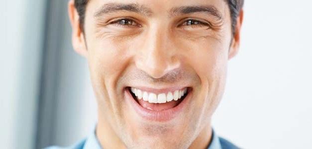 لمینت دندان اقایان1