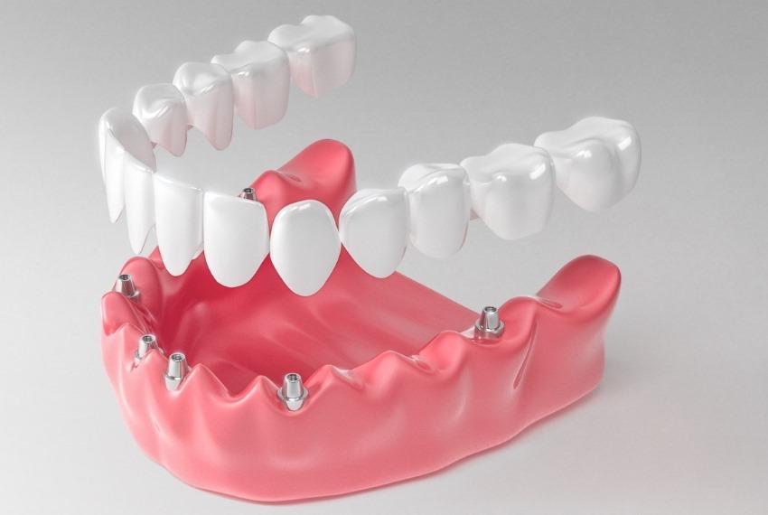 dental-prosthesis