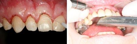 عوارض افزایش تاج دندان