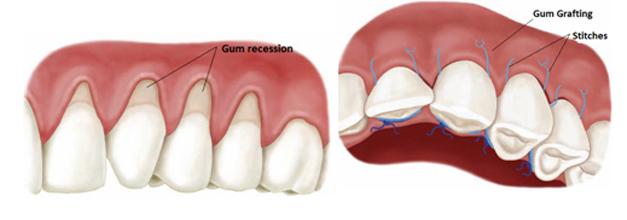 Gum transplant