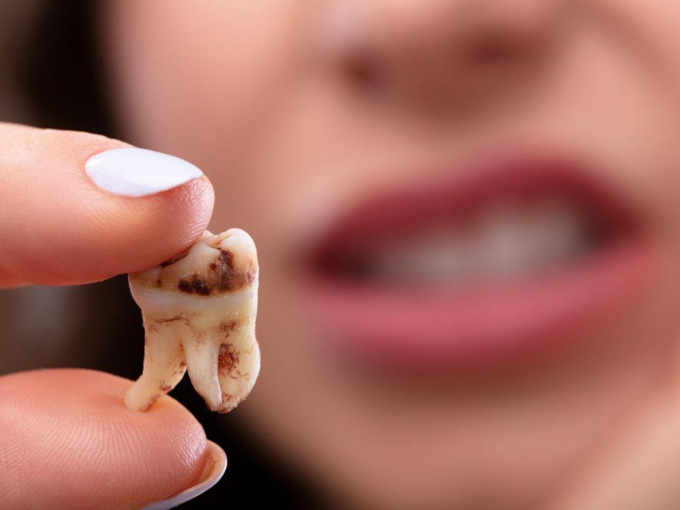 عوارض پوسیدگی دندان