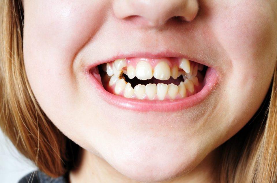 مال اکلوژن دندان چیست