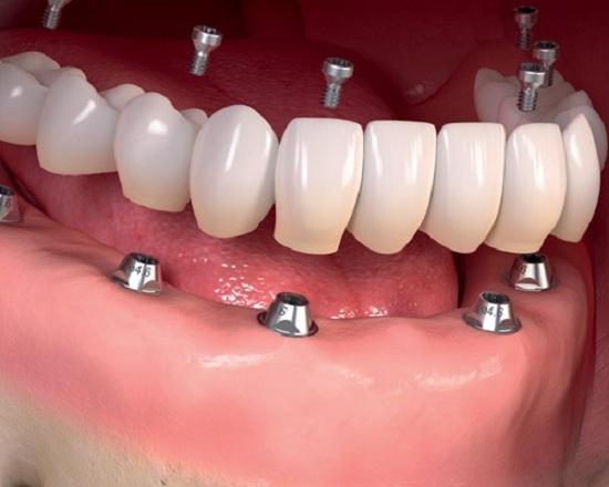 ایمپلنت دندان در تهران