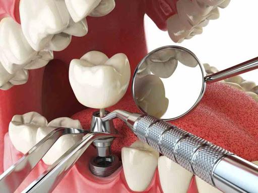 Dental implants in Tehran